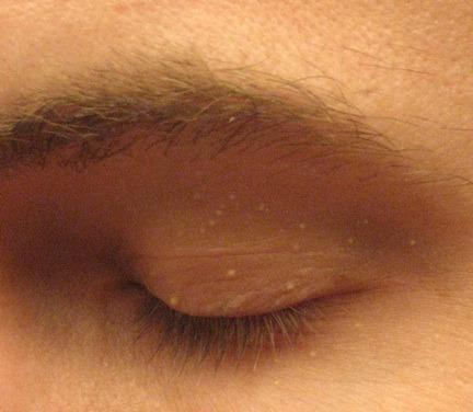 顎 白い ぶつぶつ